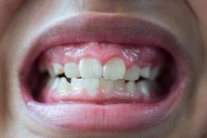 dallas kids dental emergency